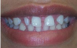 denticionirregular