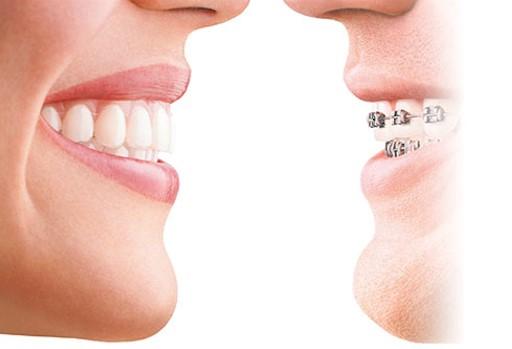 Ortodoncia en adultos, elige la mejor opción