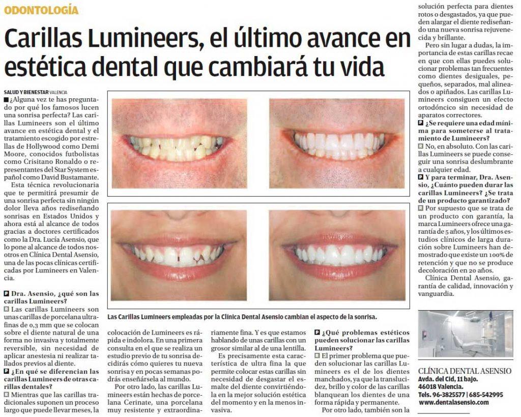 Publirreportaje de Clínica Asensio sobre Lumineers en el periódico Levante