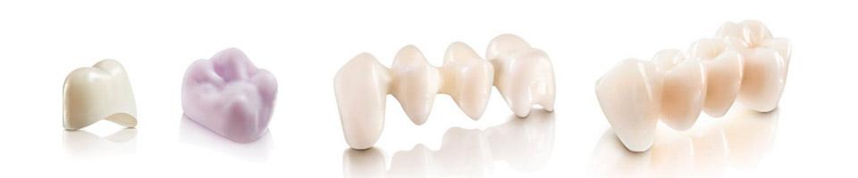 Imagen de puentes dentales para implantes
