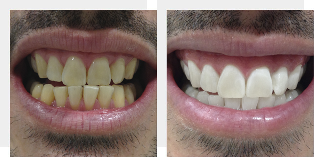 carillas esteticas antes y despues de adelgazar